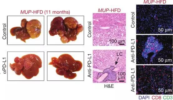 事实证明,这种免疫细胞是帮助将慢性肝炎转化为HCC,PD-1 / PD-L1或可预防的罪魁祸首